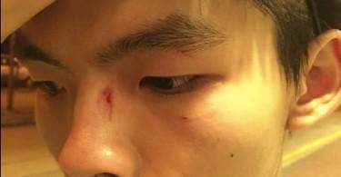 joshua wong attack