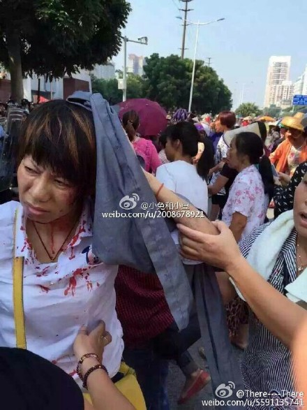 A protester was injured in clashes on Thursday. Photo; Weibo.