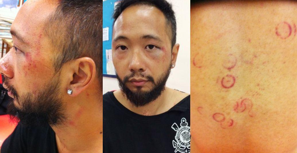 ken tsang police injuries