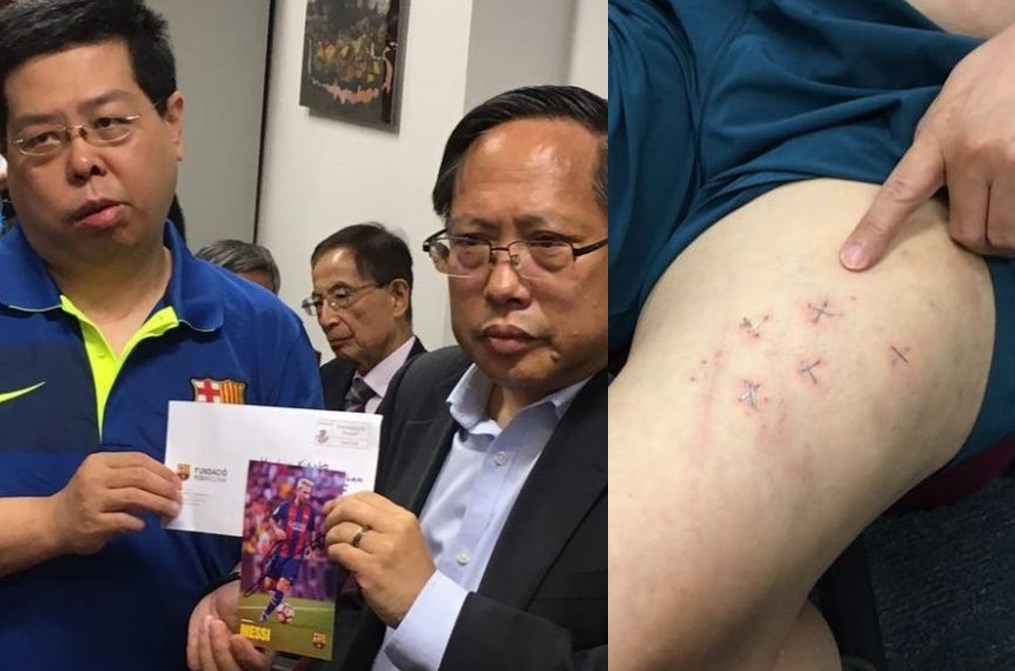 howard lam injury