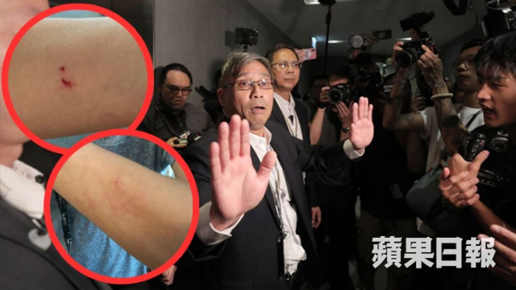 apple daily legco reporter injury