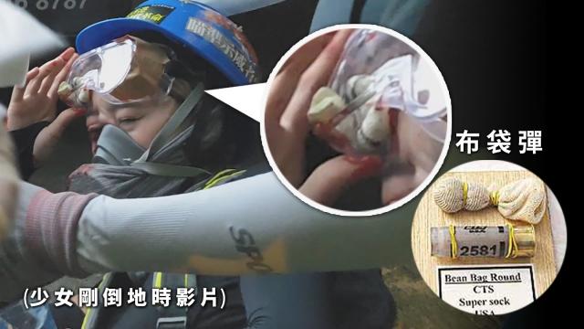 Female protester eye beanbag