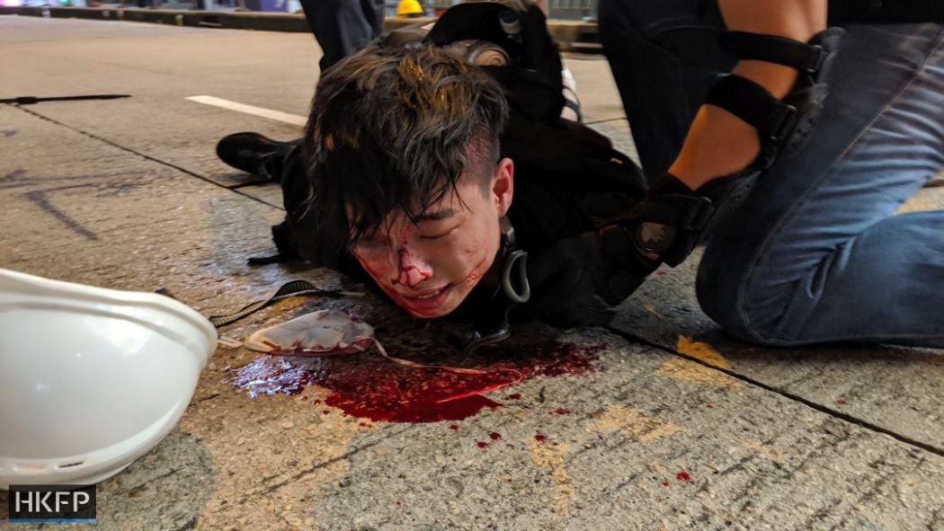 blood arrest causeway bay august 11 china extradition