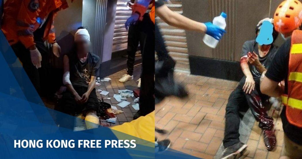 Hong Kong man in black slashed by assailants targeting
