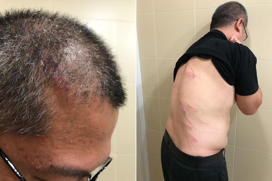Ronald Leung bruises