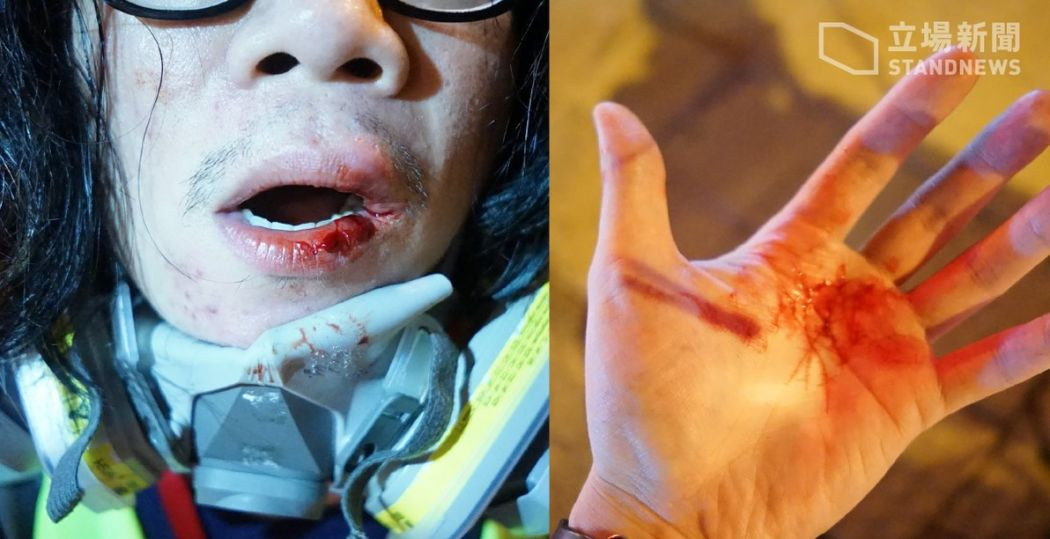 Stand News reporter assault Yau Ma Tei extradition protest