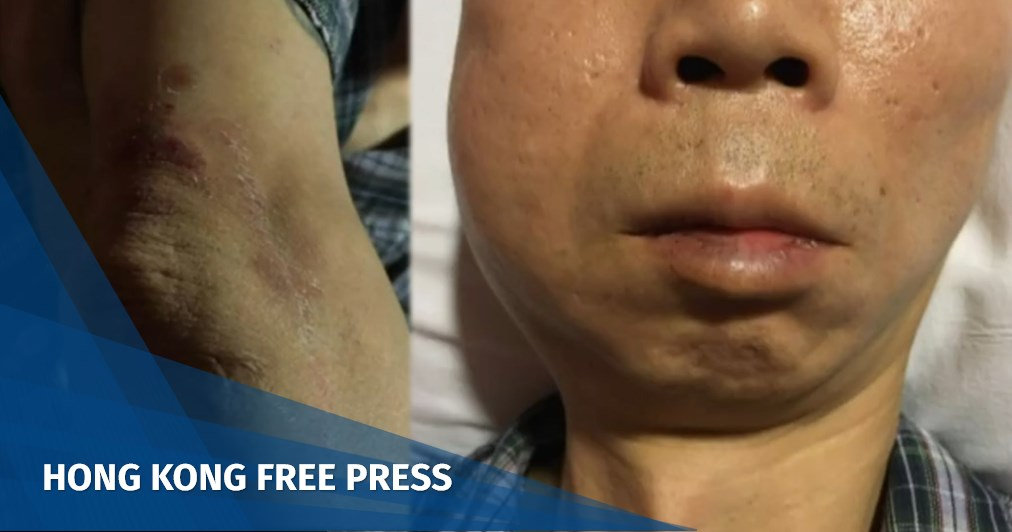 Hong Kong police apologise and vow to investigate case of Now TV driver hit by projectile and detained | Hong Kong Free Press HKFP