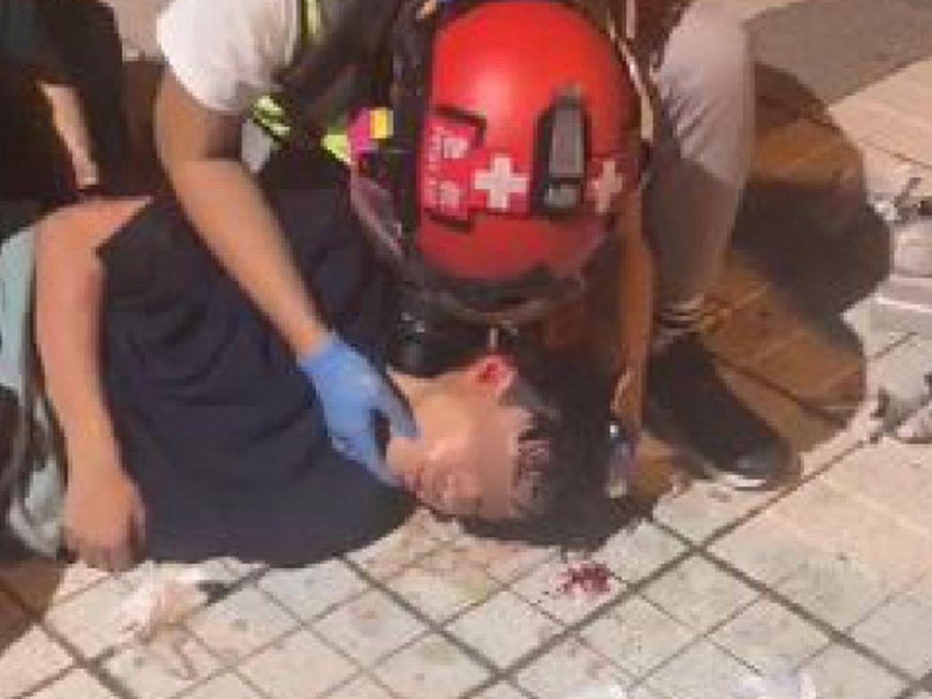 tin shui wai tear gas head injury
