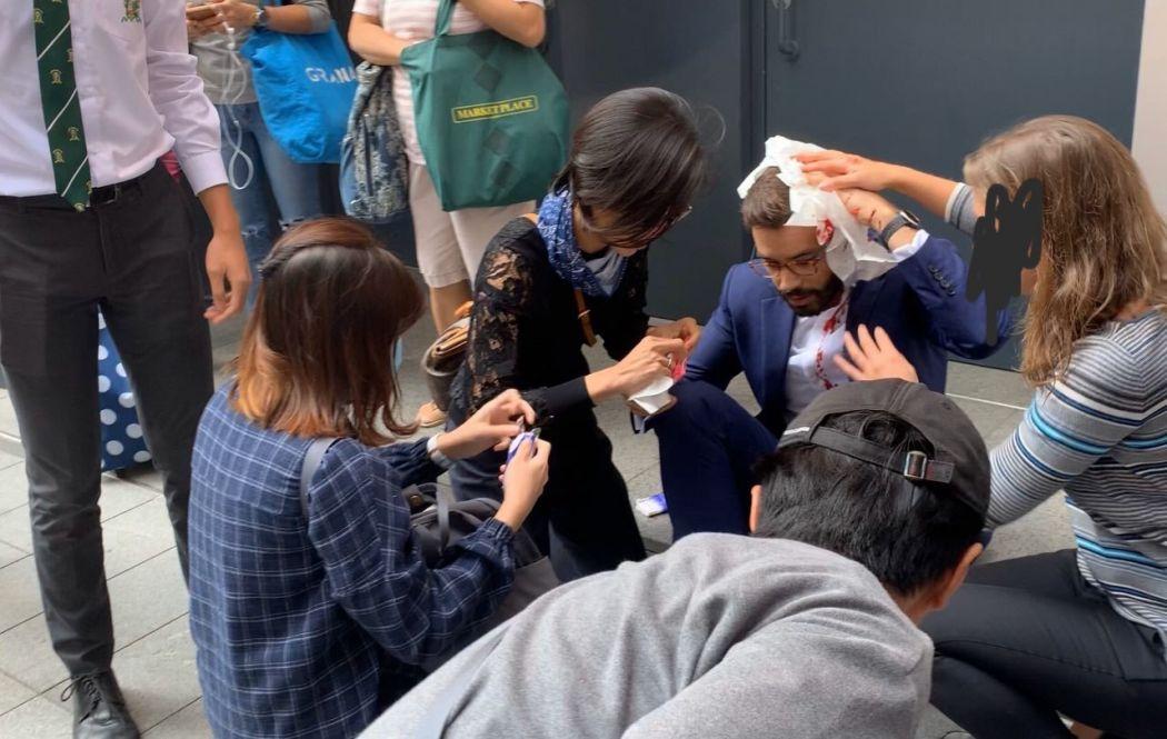 Central tear gas hit head