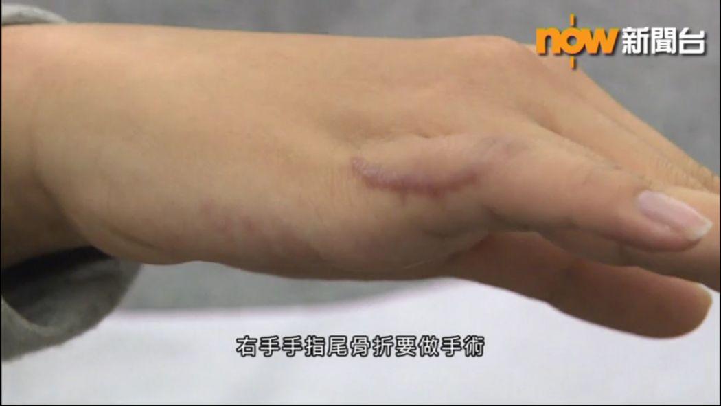 Injured student surnamed Chu