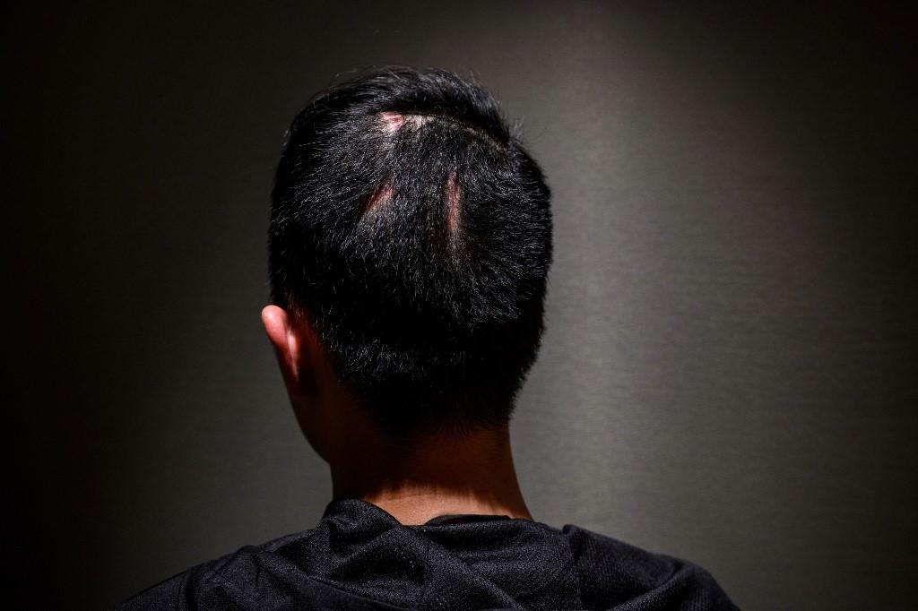 Hong Kong protester student scar