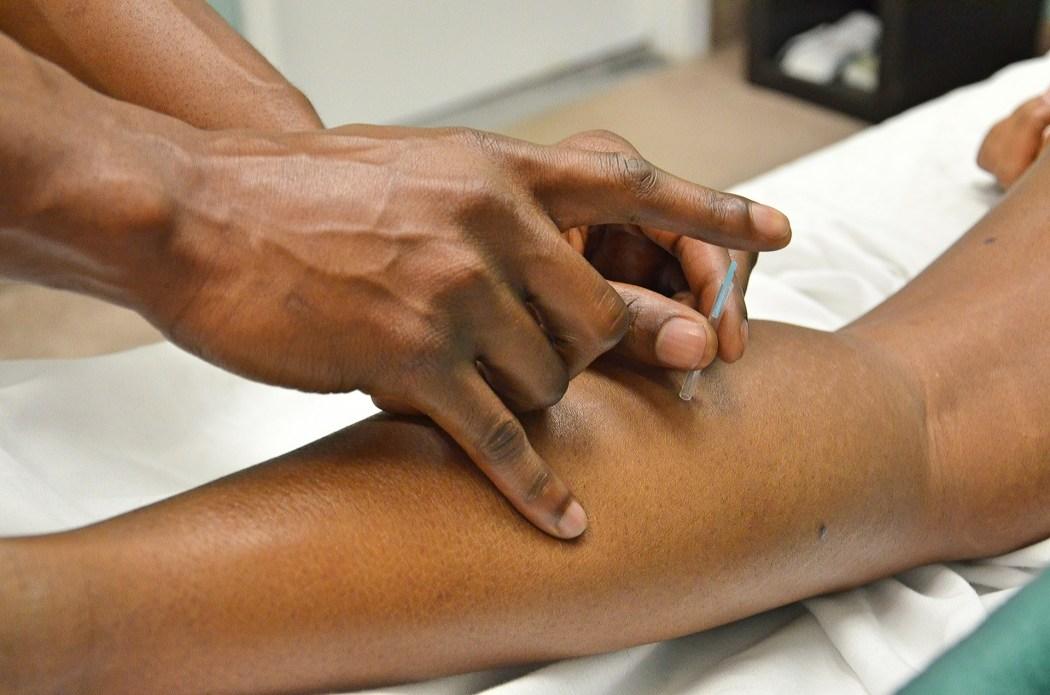 akupunktur pengobatan tradisional cina TCM